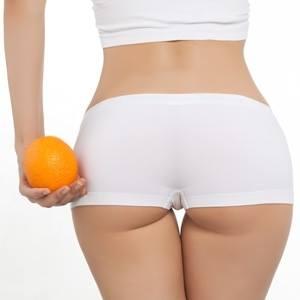 Rádiófrekvenciás narancsbőr kezelés
